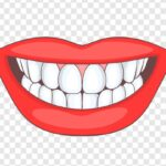 Tips for Invisalign treatment